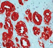 DP033 - Kallikrein-3 / PSA / KLK3