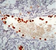 DP053 - Myeloperoxidase