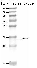 DP083 - XRCC3