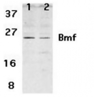 SP1414P - BMF