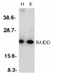 SP1261 - RAIDD