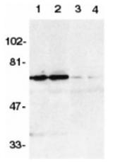 SP1298 - TNFRSF21 / Death receptor 6 (DR6)