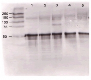 R1585 - Angiopoietin-1