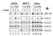 R1493 - ZNF148