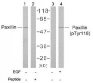 AP02638PU-S - Paxillin /  PXN