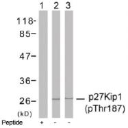 AP02472PU-S - CDKN1B / KIP1