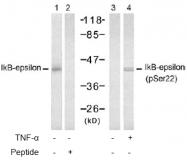 AP02473PU-S - NFKBIE / IKBE