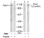 AP02475PU-S - FAK2 / PTK2B