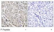 AP02476PU-S - RELA / NF-kB p65