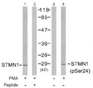 AP02483PU-S - Stathmin / STMN1