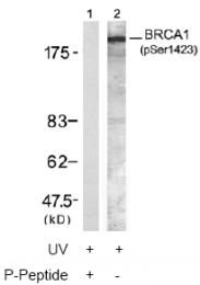 AP02496PU-S - BRCA1 / RNF53