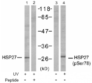 AP02500PU-S - HSPB1 / HSP27