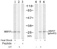 AP02501PU-S - HSPB1 / HSP27