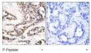 AP02518PU-S - CREB1