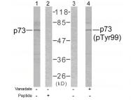 AP02357PU-S - Tumor protein p73 (TP73)