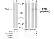 AP02358PU-S - FAK1 / PTK2