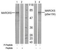 AP02531PU-S - MARCKS