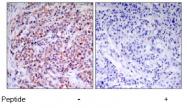 AP02555PU-S - RELA / NF-kB p65