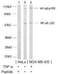 AP02559PU-S - NFKB2 / NF-kappa-B p100/p52