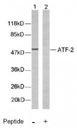 AP02572PU-N - ATF2
