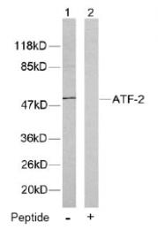 AP02573PU-S - ATF2