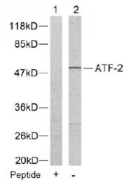 AP02574PU-N - ATF2