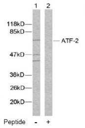 AP02575PU-N - ATF2