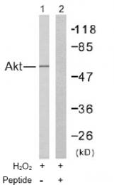 AP02596PU-S - AKT1 / PKB
