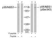 AP02599PU-S - Nibrin