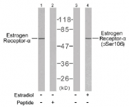 AP02607PU-N - Estrogen receptor alpha