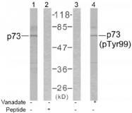 AP02615PU-S - Tumor protein p73 (TP73)