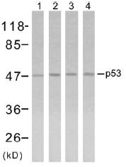 AP02626PU-N - TP53 / p53