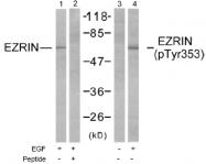 AP02628PU-S - Ezrin
