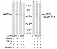 AP02412PU-S - AKT2 / PKB beta