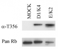 SM1842P - Retinoblastoma-associated protein / RB1