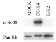 SM1843P - Retinoblastoma-associated protein / RB1