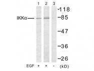 AP02652PU-S - IKKA