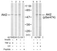 AP02678PU-S - AKT2 / PKB beta