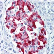 SM1341 - Amylin / IAPP