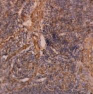 SM1375 - Vinculin (VCL)