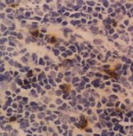SM1202PT - CD94