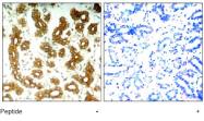 AP02790PU-S - Cytokeratin 8