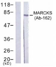 AP02758PU-S - MARCKS