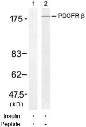 AP02728PU-S - CD140b / PDGFRB