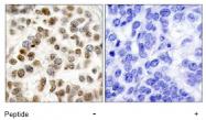 AP02739PU-S - BRCA1 / RNF53