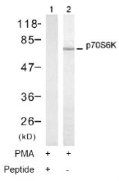 AP02748PU-S - RPS6KB1 / STK14A
