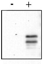 R1189 - CREB1