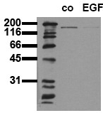 AM00044PU-N - EGFR / ERBB1