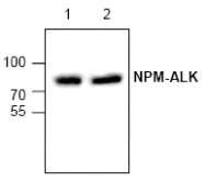 AP00112PU-N - CD246 / Anaplastic lymphoma kinase