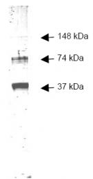 R1049 - Alcohol dehydrogenase 1